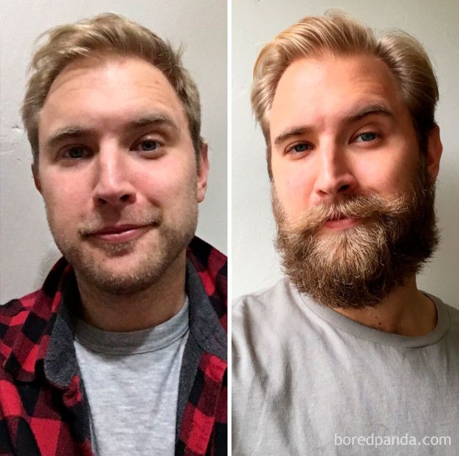 Three Month Beard Progress: Before/After