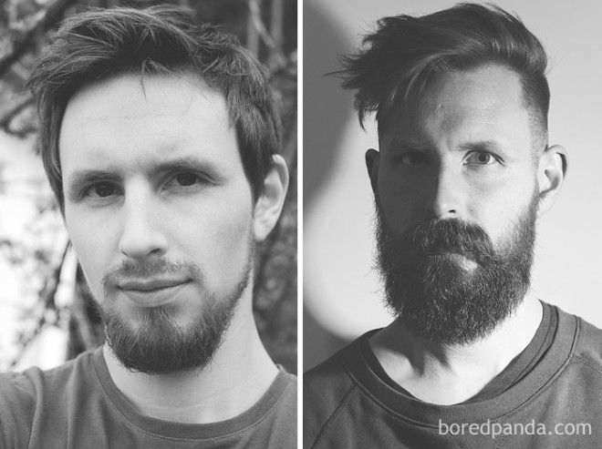 Beard Growth Pattern At 23 Versus 28 Years Old. Just Goes To Show That There Is Hope Even For The Latest Of Bloomers