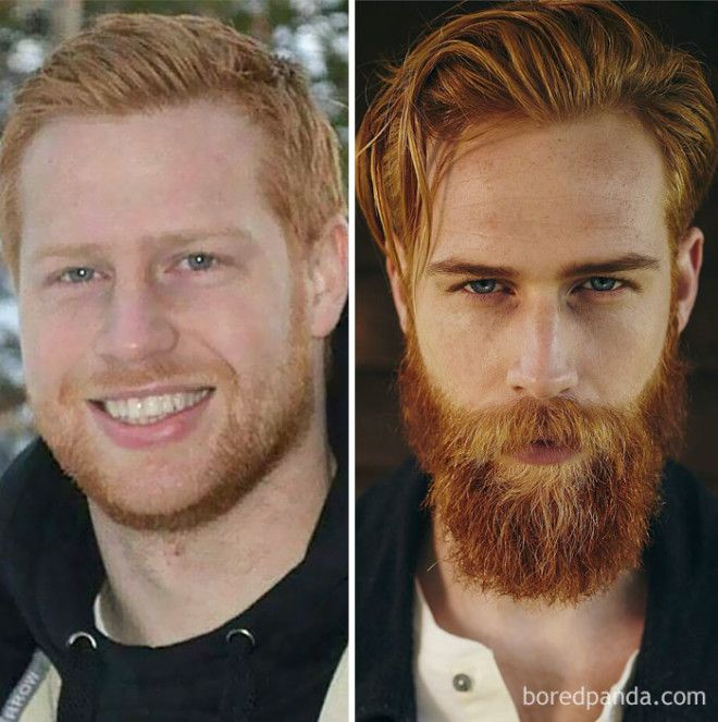 Before And After Beard