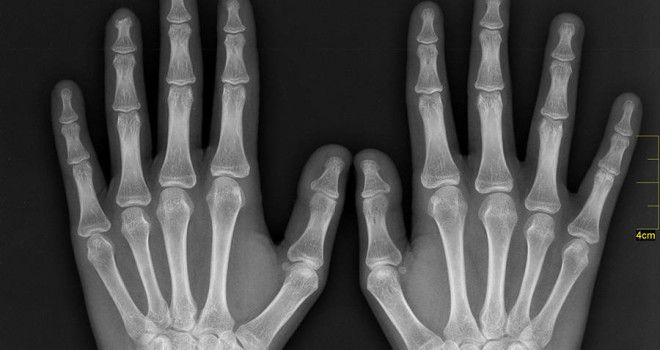 X Ray Hands
