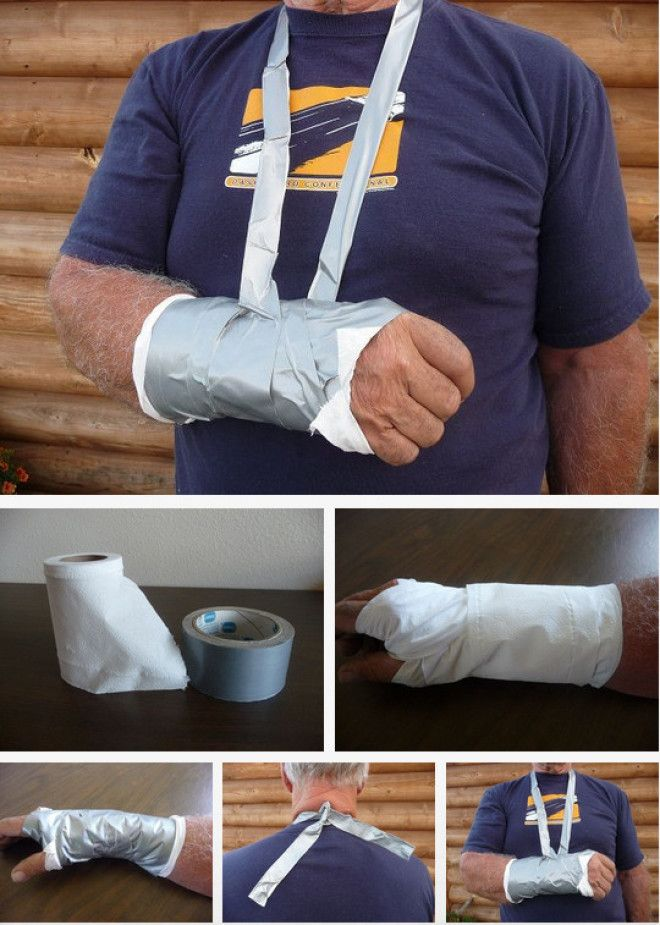 If you can't get to the hospital, you can set a broken arm with toilet paper and duct tape.